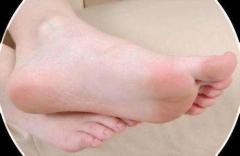脚气原因多 得脚气的四种原因