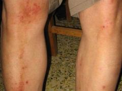 全身皮肤过敏什么原因
