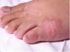 冬季体股癣的发病原因