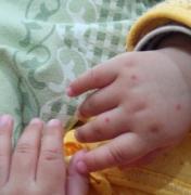 预防手足口病 注意四点的相关图片