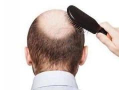 脱发的护理方法