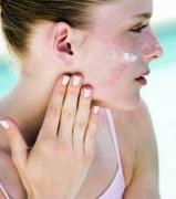 皮肤经常过敏的因素