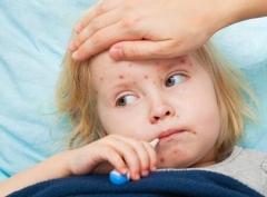 引起小儿荨麻疹的因素