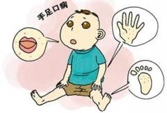 得了手足口病怎么护理的相关图片