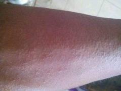 全身皮肤过敏的因素