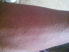 出现全身皮肤过敏该怎么护理