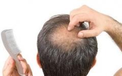 男性脱发的原因的相关图片