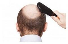 男性脱发的主要原因的相关图片