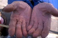 手癣的护理措施