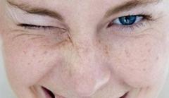 经常皮肤过敏的诱因