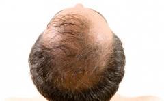 脱发严重是什么原因