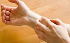 皮肤过敏瘙痒的诱因的相关图片