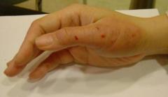 药物性皮炎的发病原因