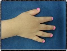 异位性皮炎的四个发病原因