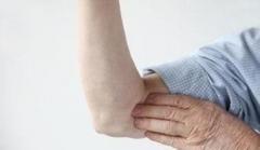 改善老年皮肤瘙痒的护理措施