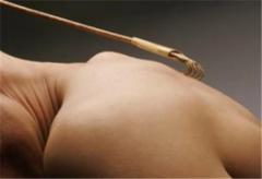 教你全身皮肤瘙痒的护理方法