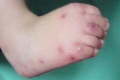 预防水痘的小知识