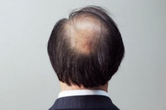 常见的脱发原因有几种
