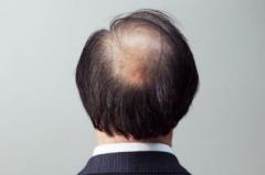常脱发的原因有几种