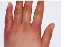 治疗冻疮的四种偏方
