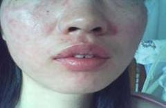 青岛皮肤医生介绍怎么去掉口周皮