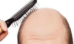 脱发形成的主要原因有哪些的相关图片
