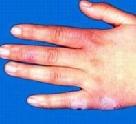 结节性红斑怎么治最好的相关图片