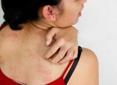 全身皮肤过敏怎么治