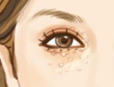 面部汗管瘤的治疗方法