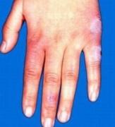 了解结节性红斑有什么症状的相关图片