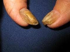 患上灰指甲的症状