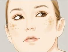 了解晒斑原因 有效防治晒斑