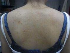 认识中药治疗毛囊炎的方法