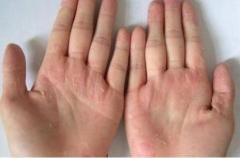 剥脱性角质松解症有什么症状