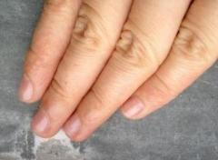 手部湿疹成因及注意事项