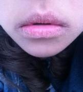 唇炎有什么严重危害