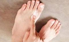 手足皲裂需预防 提前呵护保健康