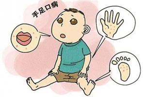 夏季怎么预防宝宝手足口病的相关图片