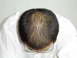 日常生活中应该怎么预防脱发