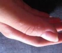 患有手癣应怎样医治的相关图片