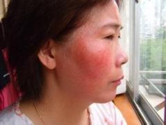 认识带状疱疹有什么危害与症状及