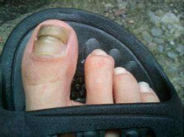 灰指甲的治疗护理