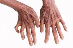 结节性红斑的主要症状要科学认知的相关图片