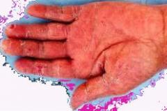 针对性的选择石菖蒲药方对手癣进行科学化医治以去除手癣的相关图片