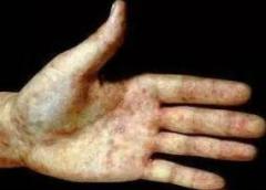 诱发硬下疳的病因需科学化了解以避免产生硬下疳的相关图片