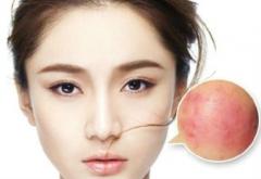 青岛皮肤红血丝秋季的症状表现特点是什么