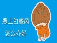 白癜风患者秋季日常生活饮食注意事项当科学认知