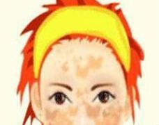 致使黄褐斑产生的原因要科学化了解以尽快去除黄褐斑
