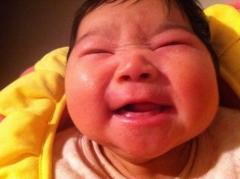 青岛婴儿湿疹医治办法或者方法是什么