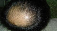 致使男性产生脱发的因素当科学认知的相关图片